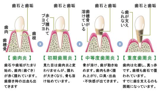 歯周病と口の中以外の病気との関係