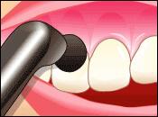 歯周病予防に欠かせないメンテナンス治療のご案内