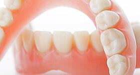 歯の詰め物・かぶせ物